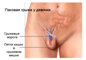 Проявление болезни у девочек